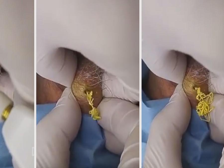 Extraen una masa amarilla del cuello de un hombre (VIDEO)