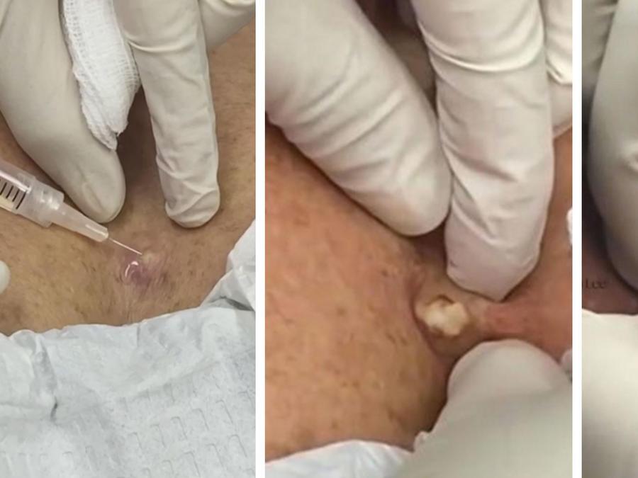 Remueve un enorme quista del pecho de una mujer (VIDEO)