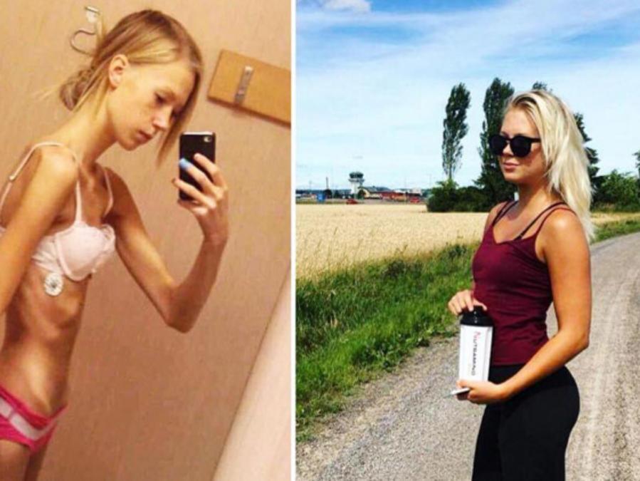 Cazandra Zetteberg antes y después anorexia