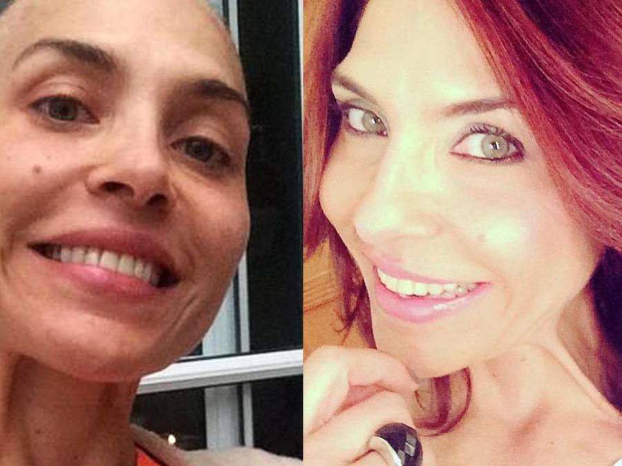 Lorena meritano, proceso en lucha contra el cáncer de seno