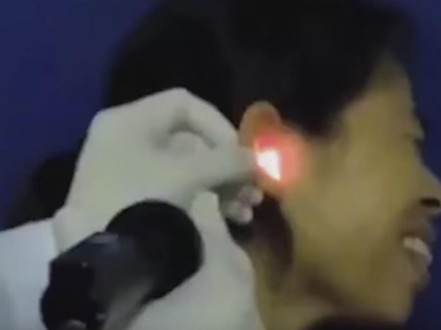 Extrae un cucaracha viva del canal auditivo de un mujer (VIDEO)