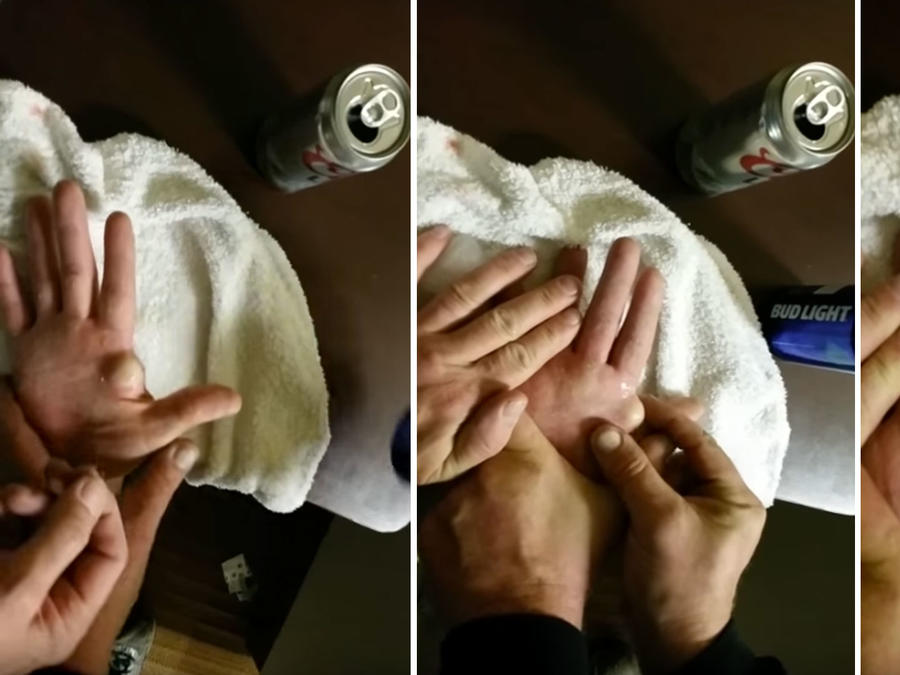 Un hombre se explota un enorme quiste que tiene en su mano (VIDEO)