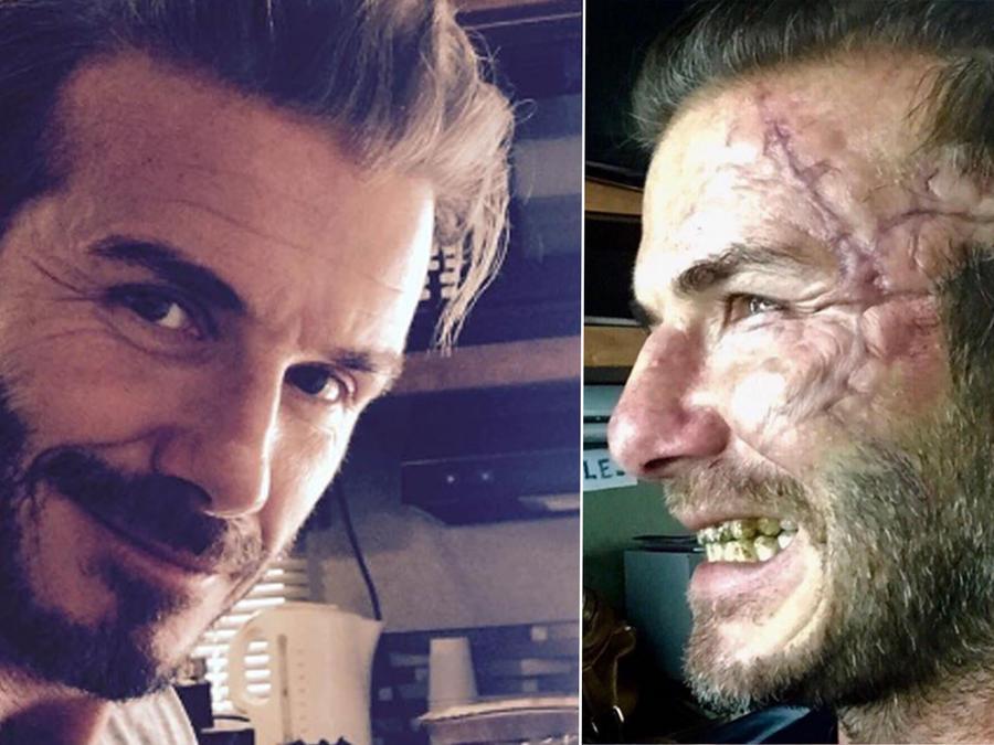 David Beckham muestra su cicatriz en la cara