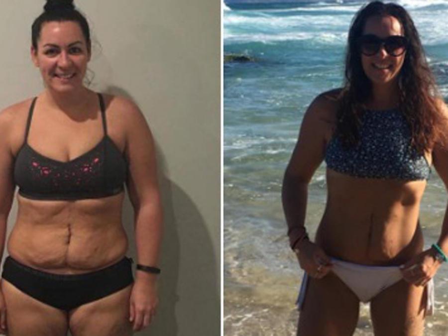 Simone Harbinson antes y después de bajar de peso