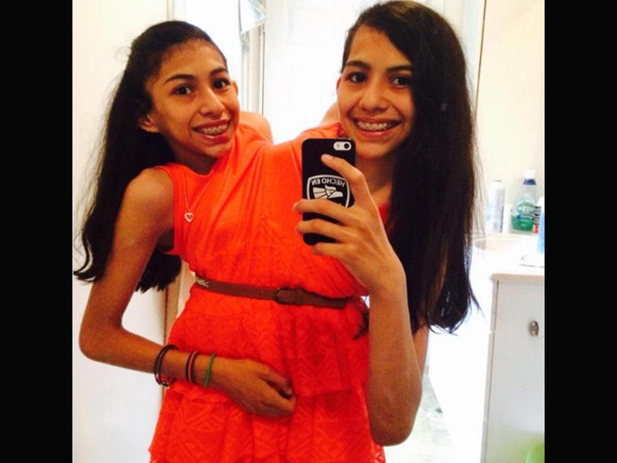 Las siamesas Carmen y Lupita tomándose una selfie