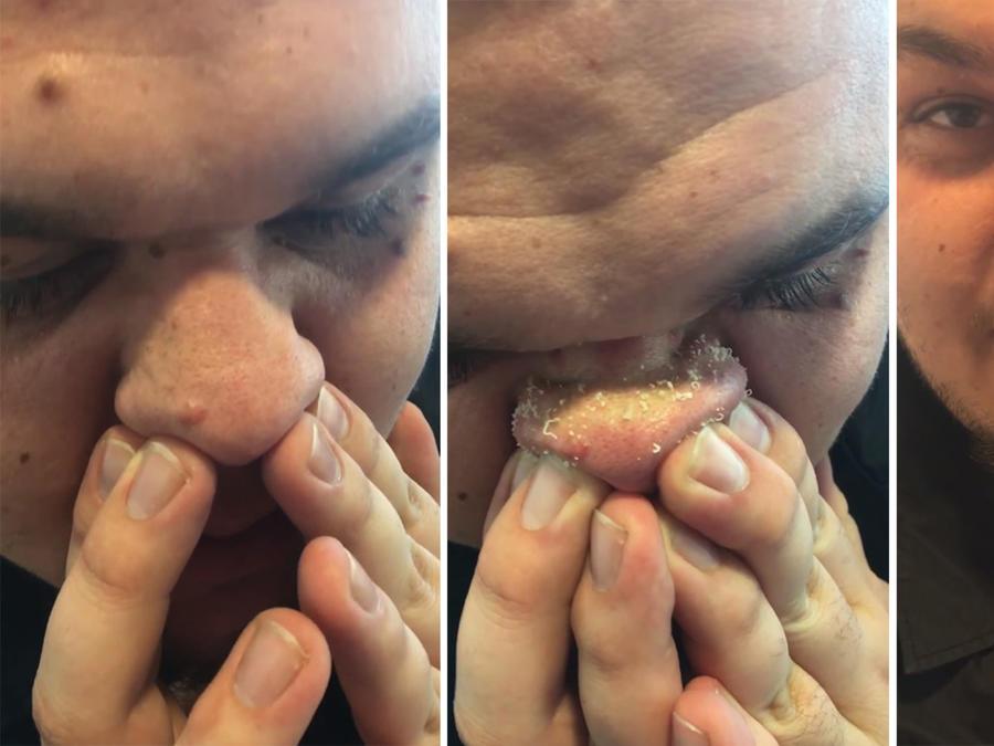Truco para sacar las espinillas de la nariz