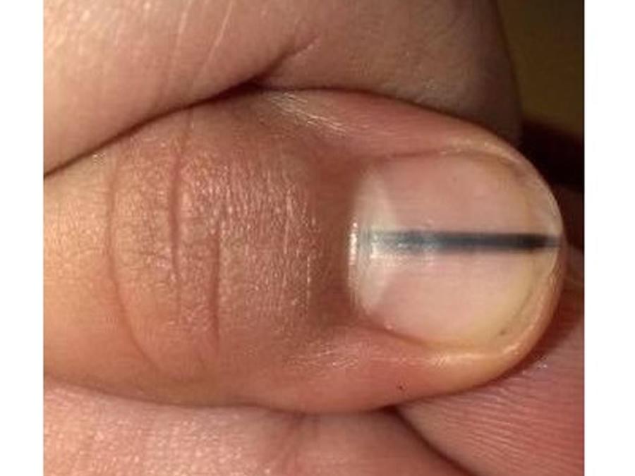 Melanoma en uña