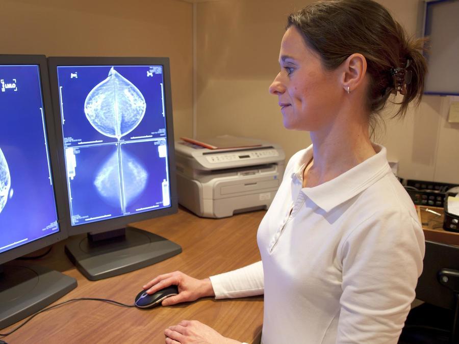 Mujer revisando mamografía