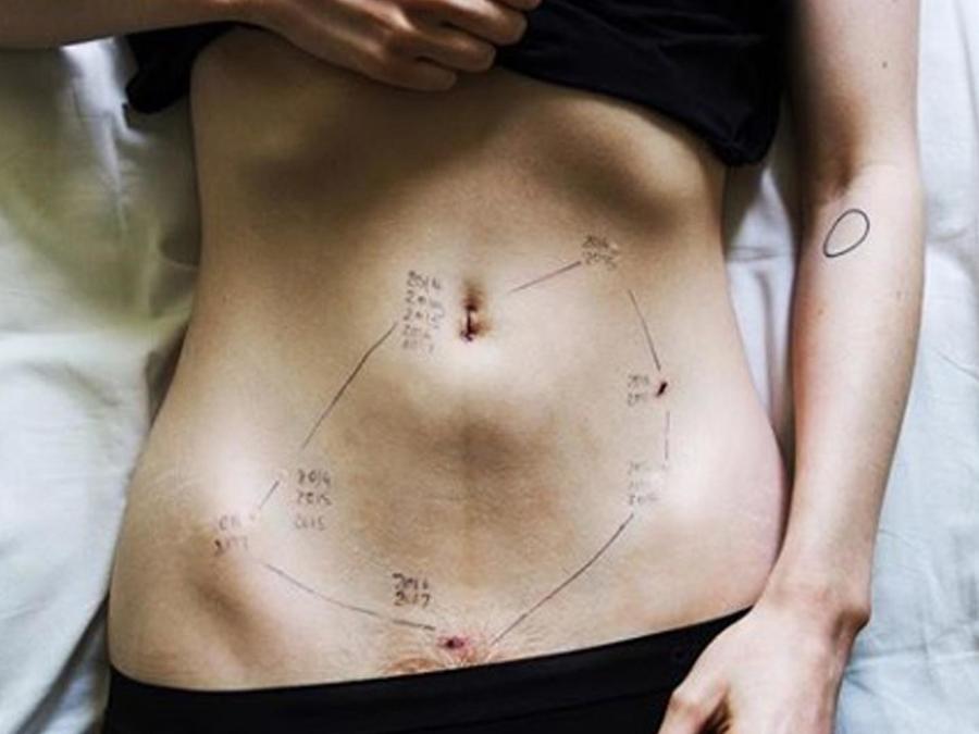 Foto de endometriosis