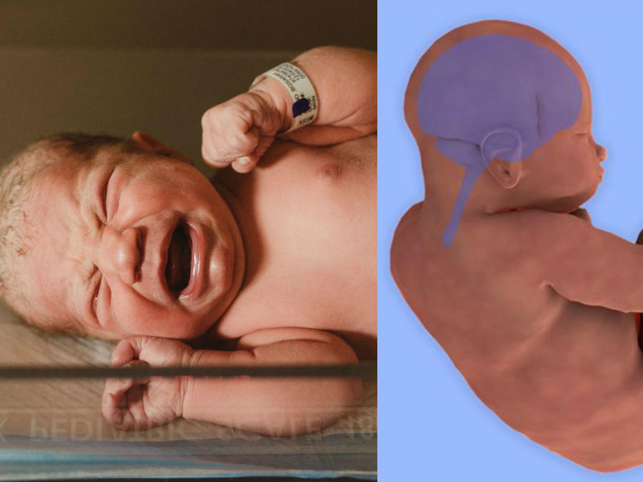 Cambios en el bebé durante el parto