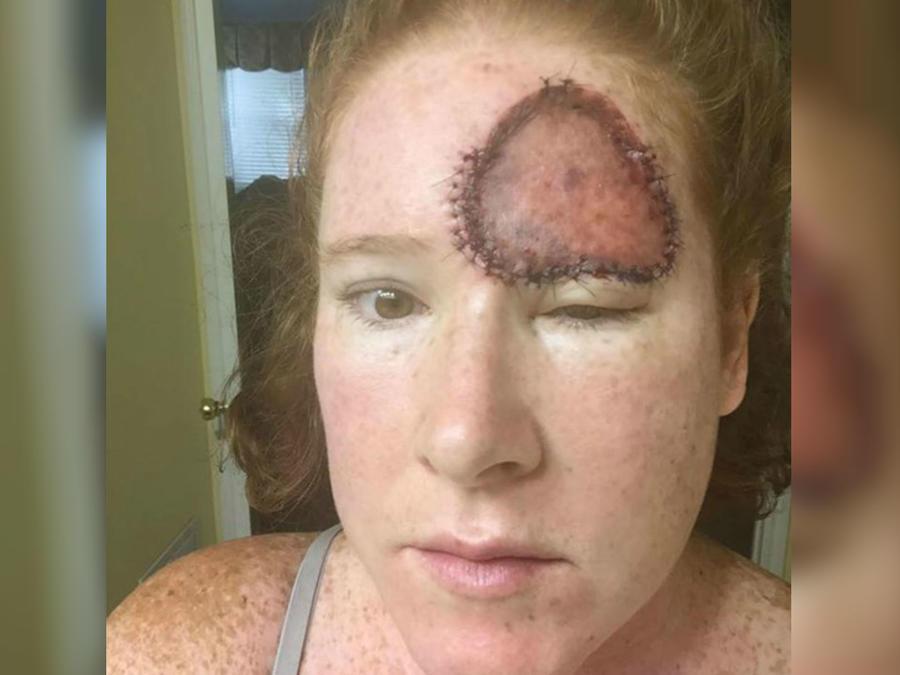Bethany Greenway y su recuperación tras el cáncer de piel