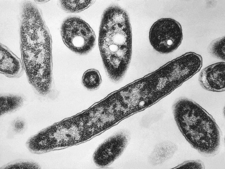Imagen de archivo de la bacteria Legionella pneumophila, responsable de la enfermedad pulmonar del legionario
