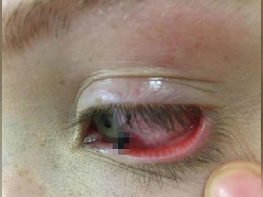 Adolescente con ojo lastimado