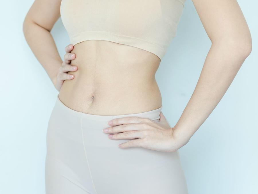 Mujer con el abdomen descubierto