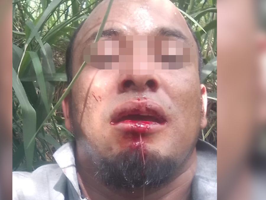 José, un migrante hondureño que sobrevivió al accidente fatal de una camioneta en Encino, Texas