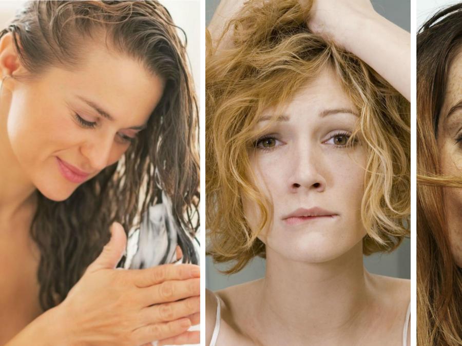 Mujeres sufriendo de la caída del cabello