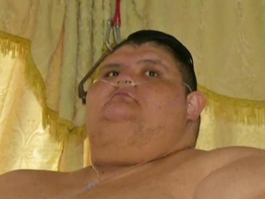hombre mas obeso de mexico
