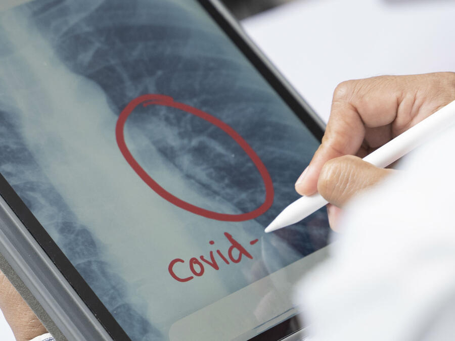 Tomografía de pulmones con COVID-19