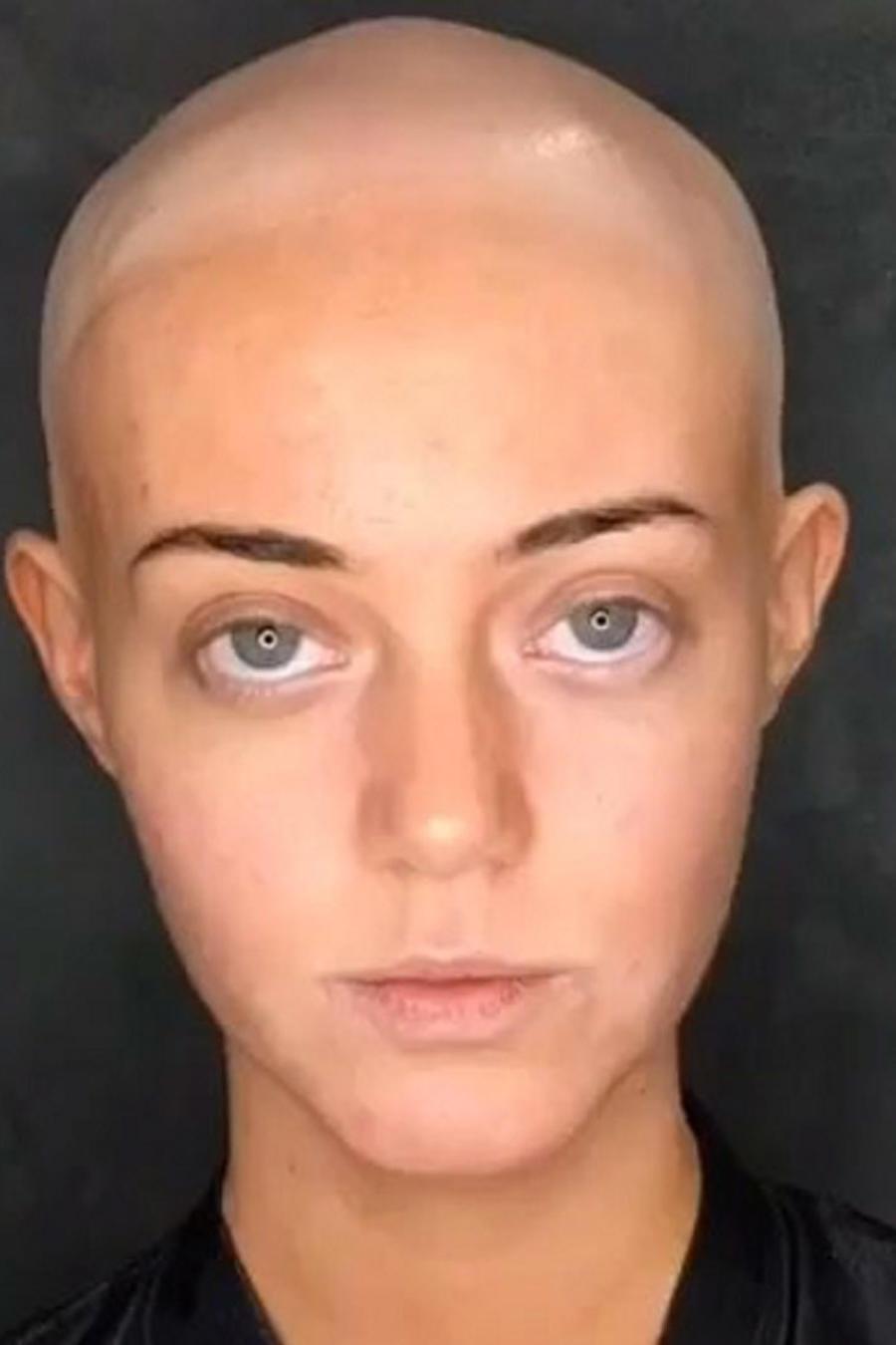 Modelo Lara Kitchen revela que padece de alopecia