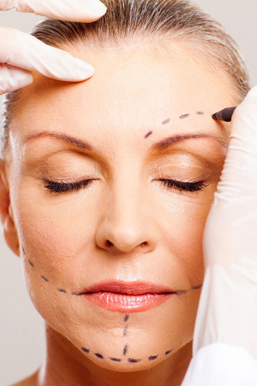 Cirugía plástica en mujer mayor