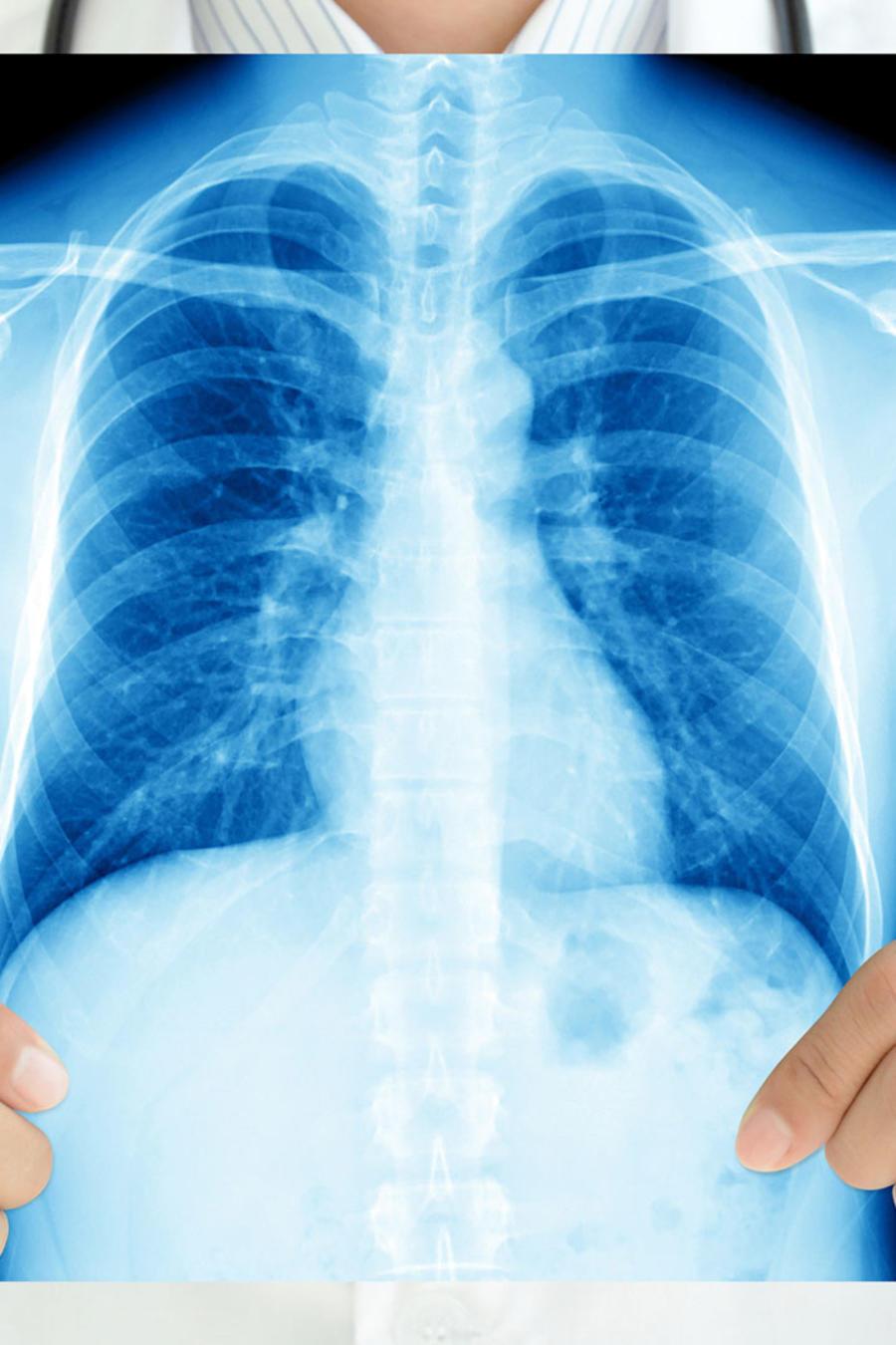 Médico con radiografía de pulmones