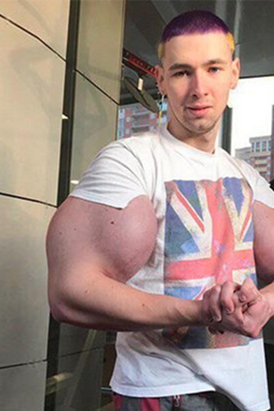 Huk ruso muestra el daño que le ha hecho a sus brazos