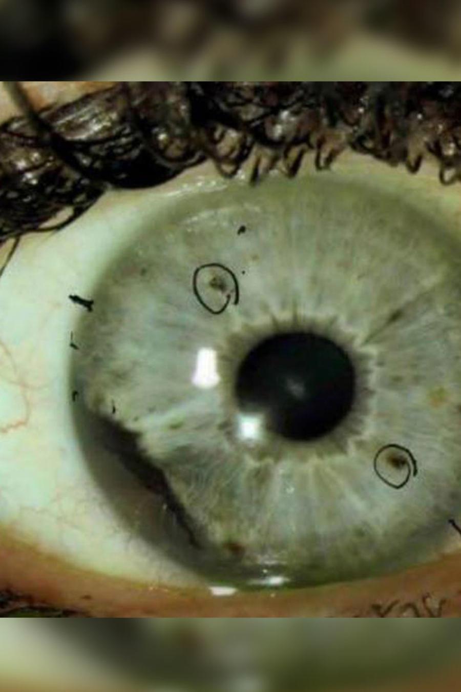 Foto de melanoma ocular