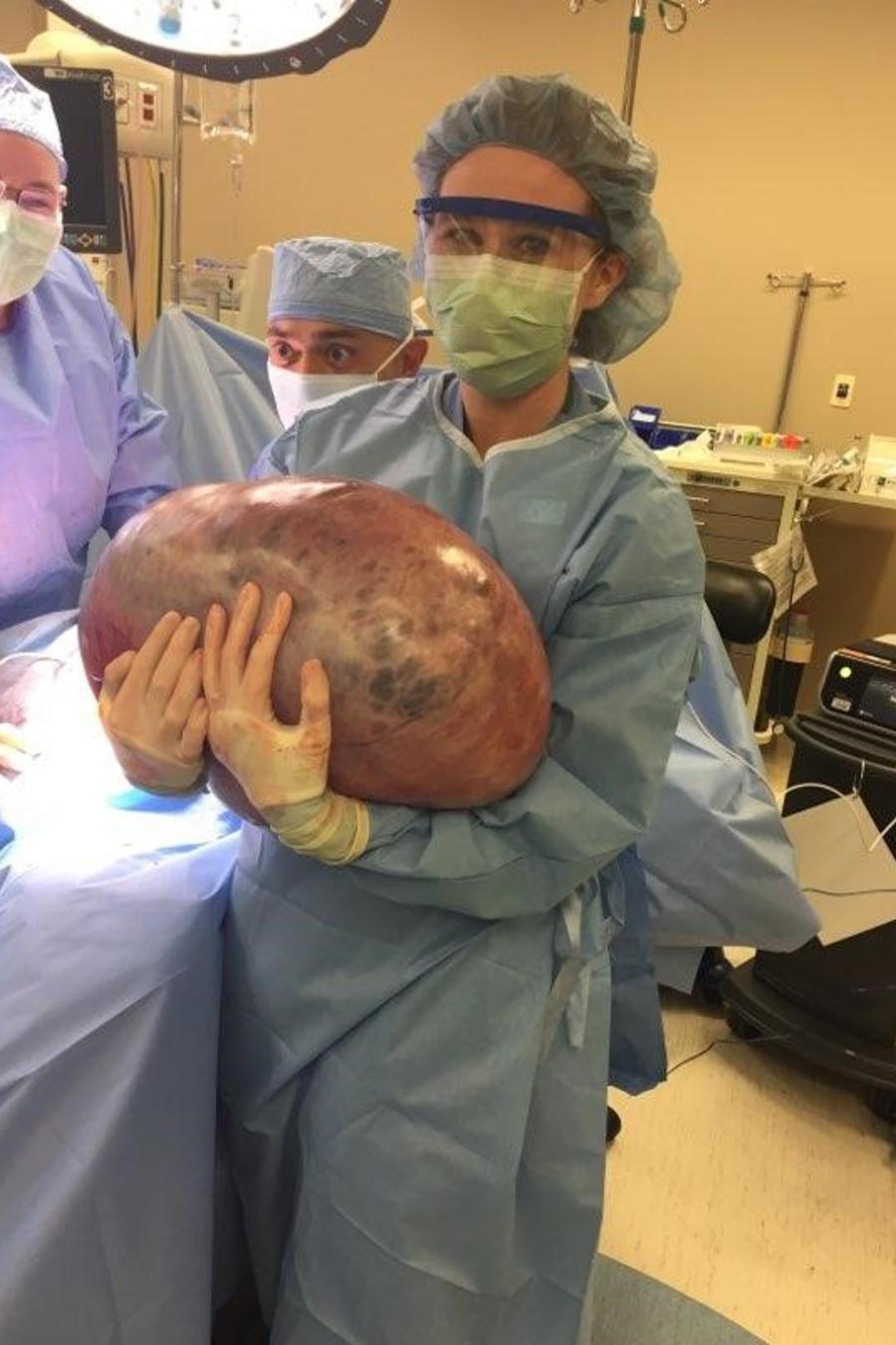 Quiste de ovario de 50 libras