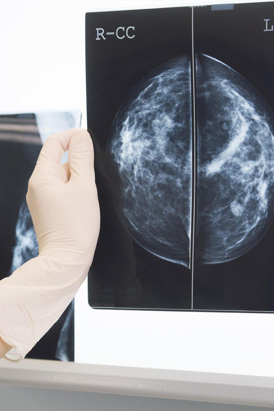 Médica mirando mamografía