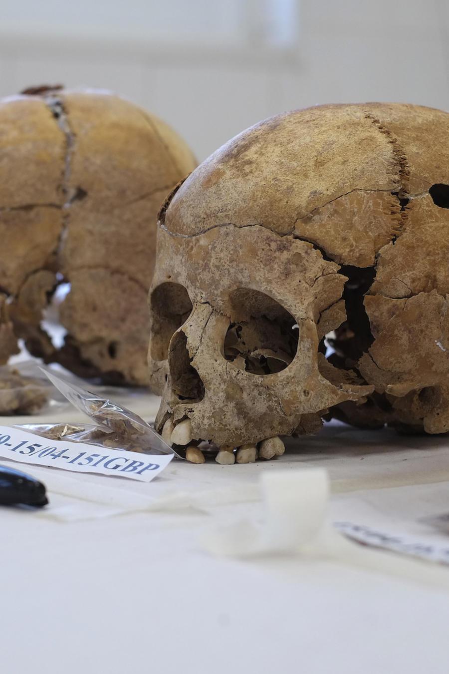Imagen de archivo de restos humanos.