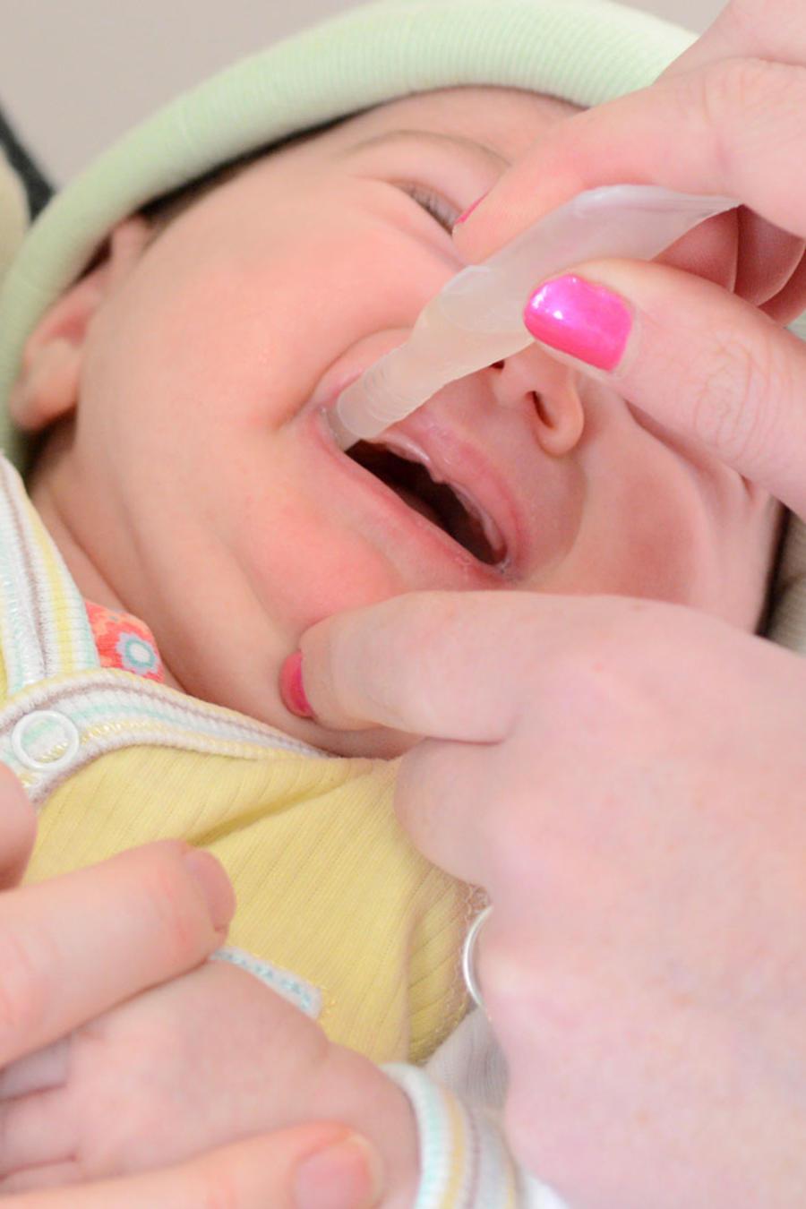 Revisión de boca de bebé