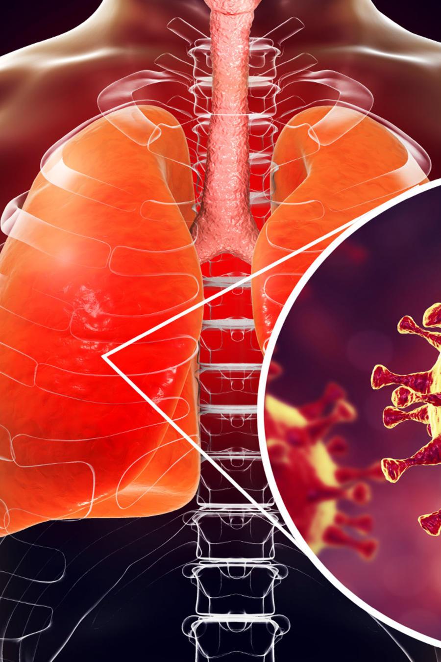 Pulmones con coronavirus