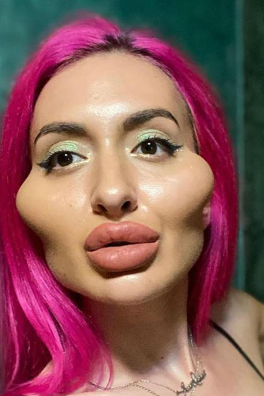 Mujer con mejillas voluptuosas
