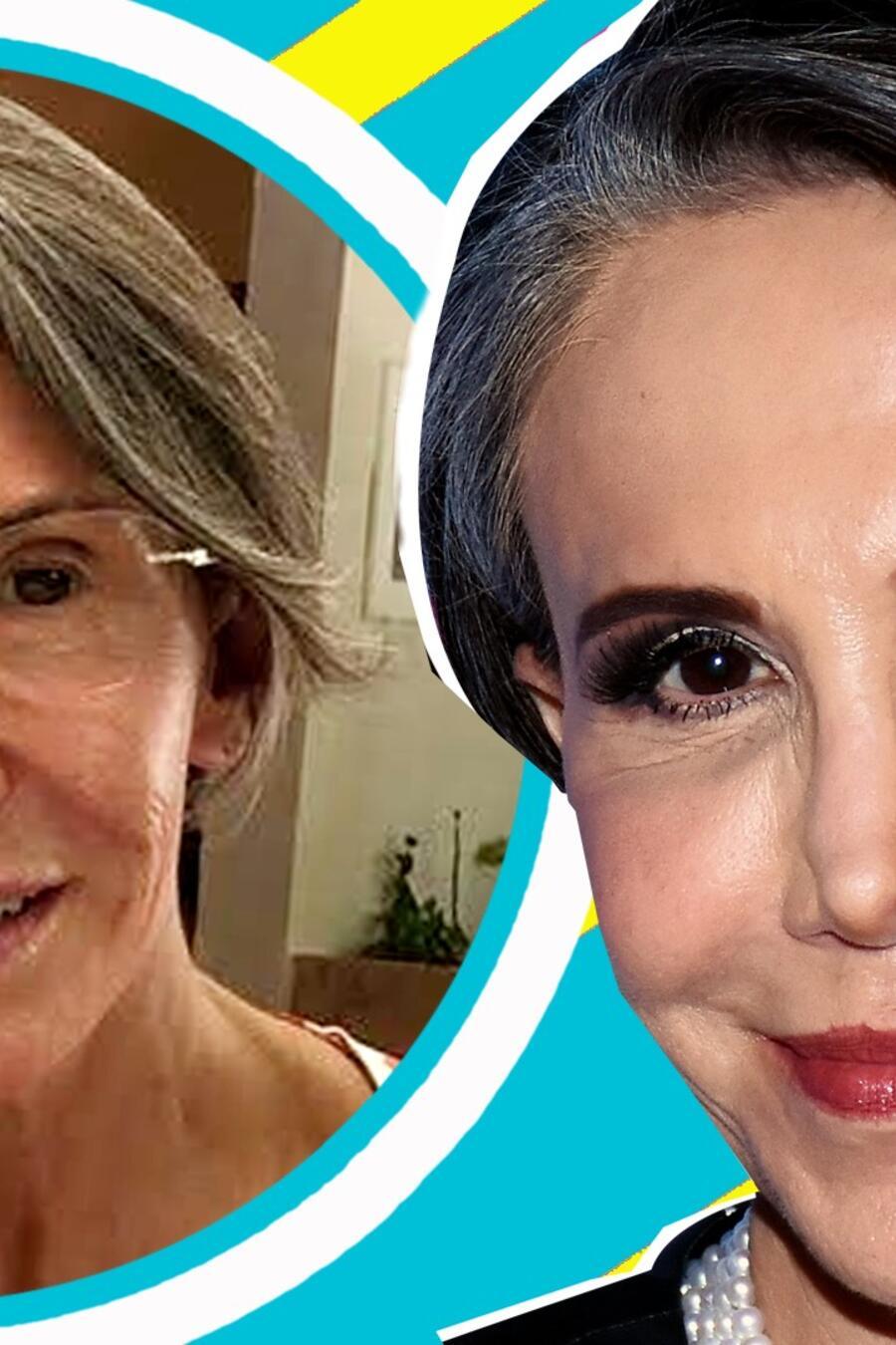 Florinda Meza sufre aparatoso accidente y las secuelas en su rostro preocupan