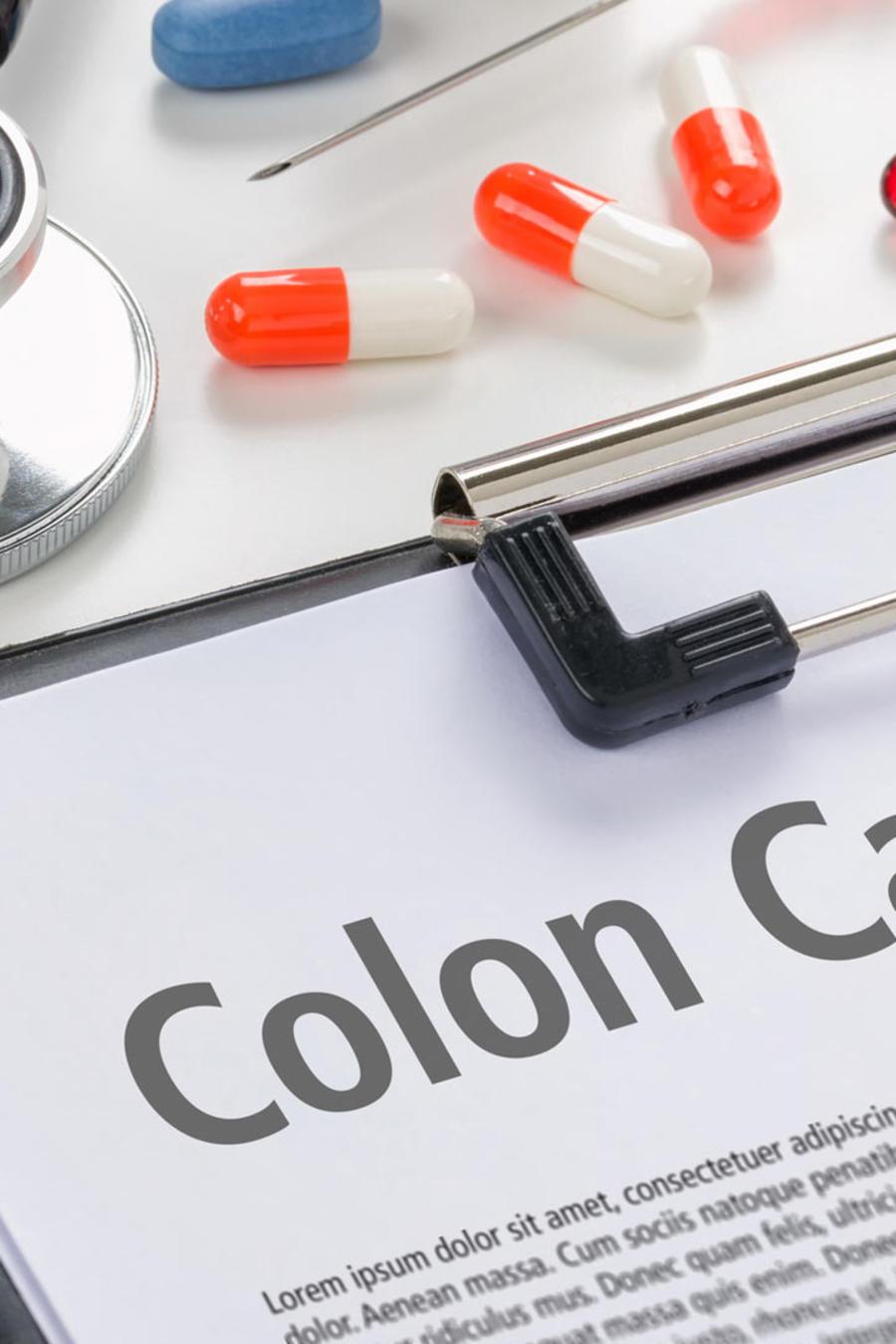 cancer de colon en jovenes