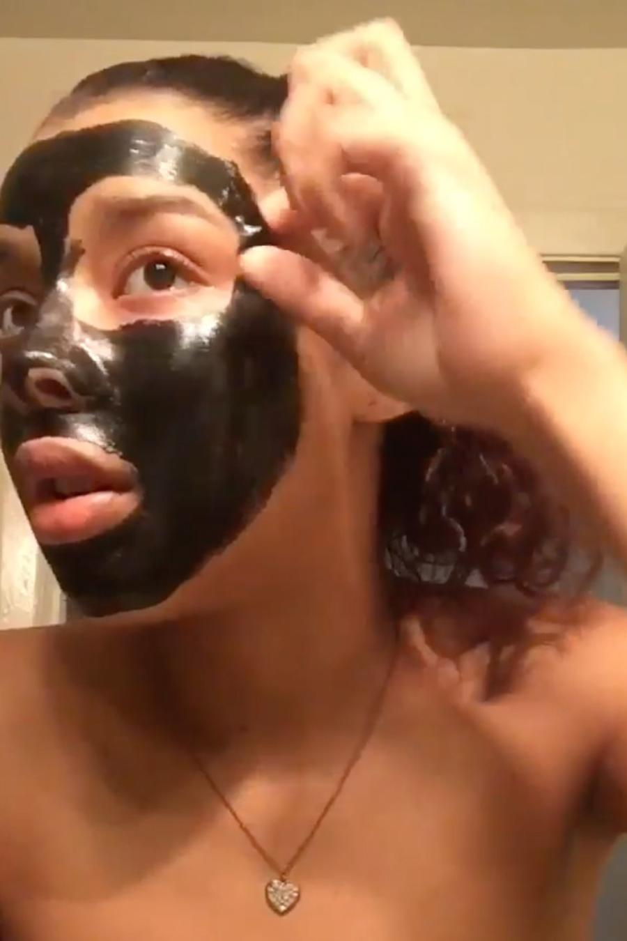 Teen peels off painful face mask