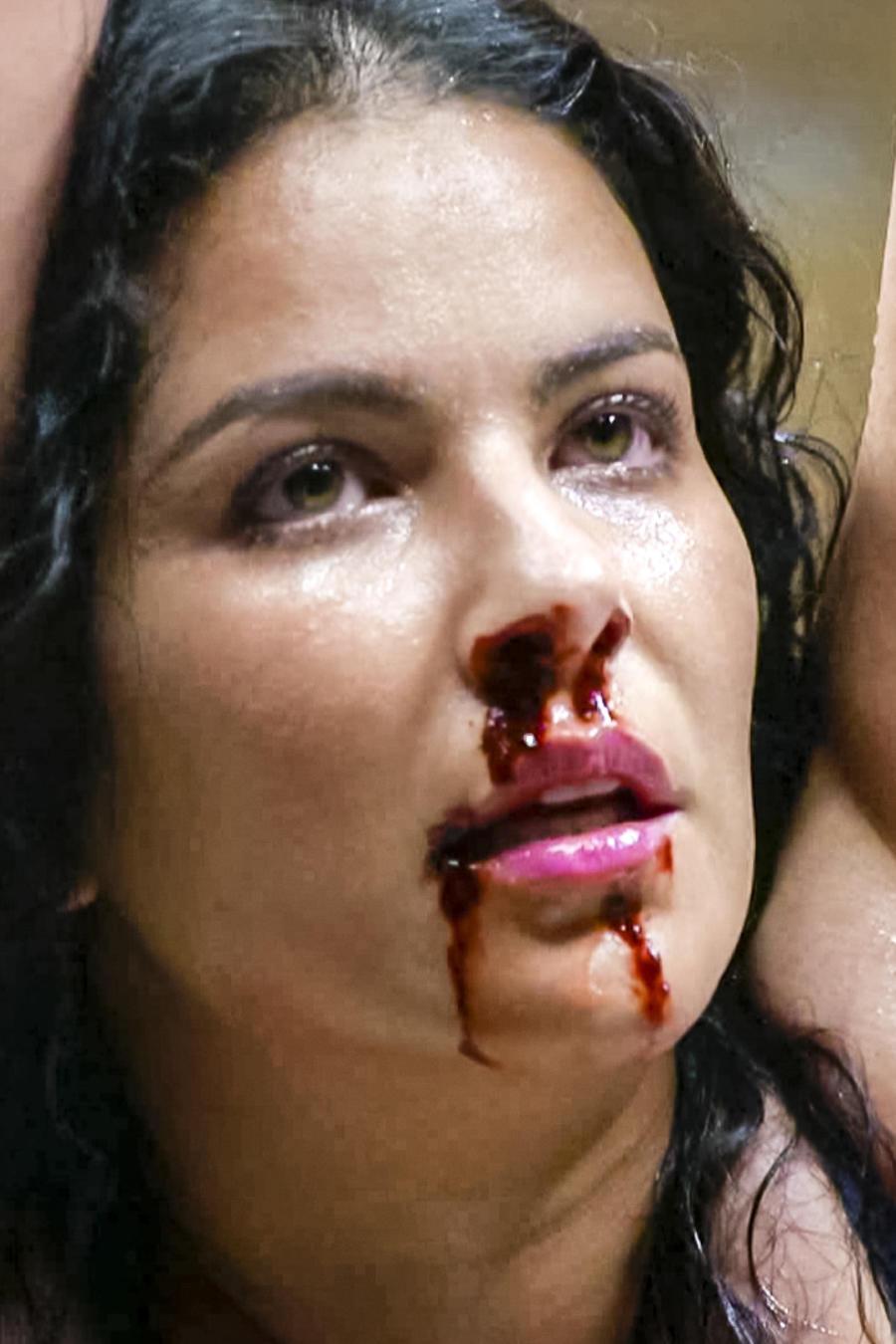 Litzy, Aracely, Litzy, herida, Señora Acero 3 La Coyote