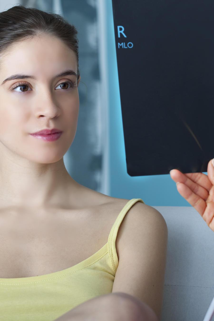 Mitos más comunes sobre el cáncer de mama