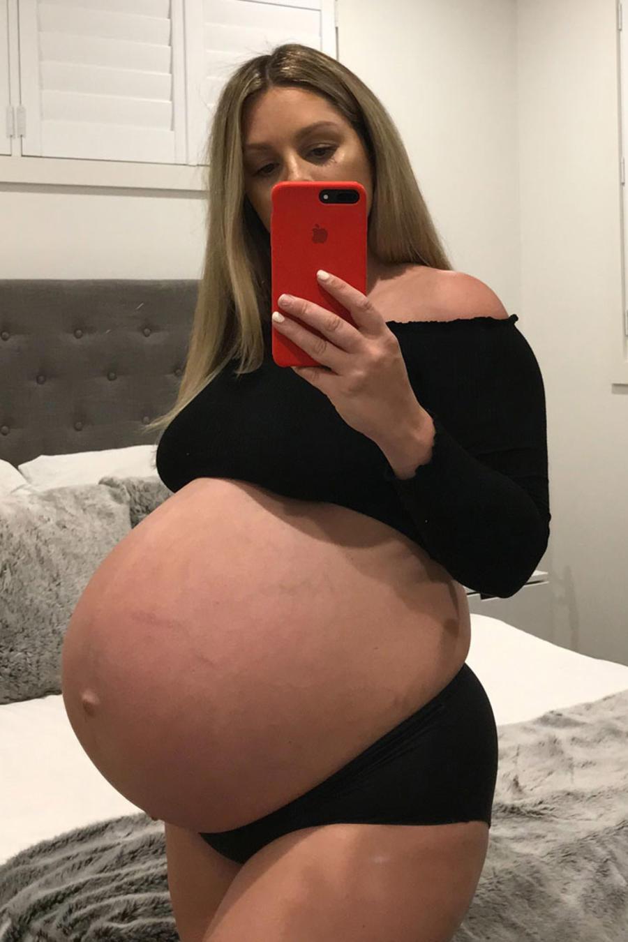 Embarazada recibe críticas