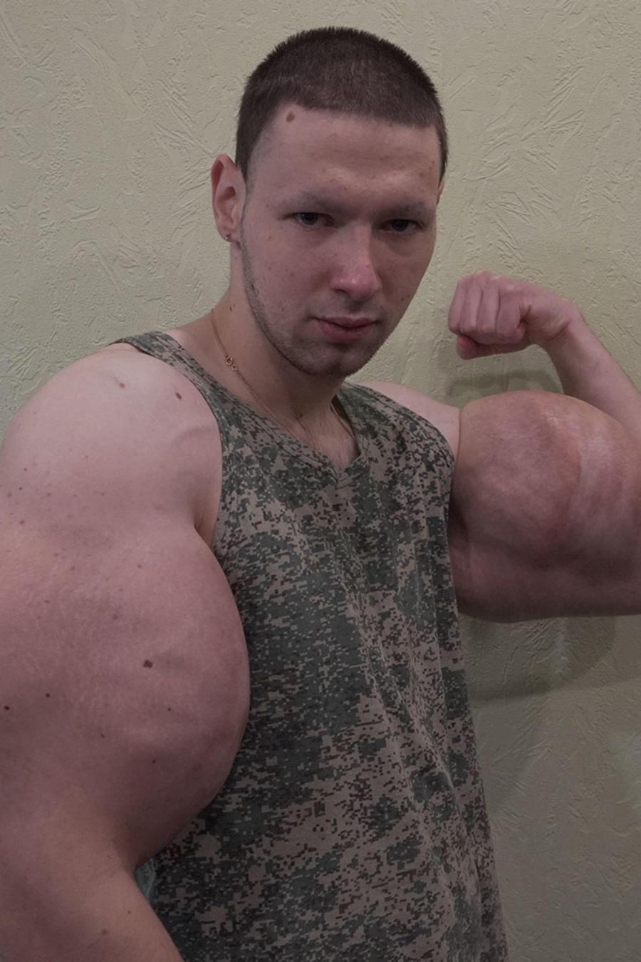 Hombre con brazos gigantes
