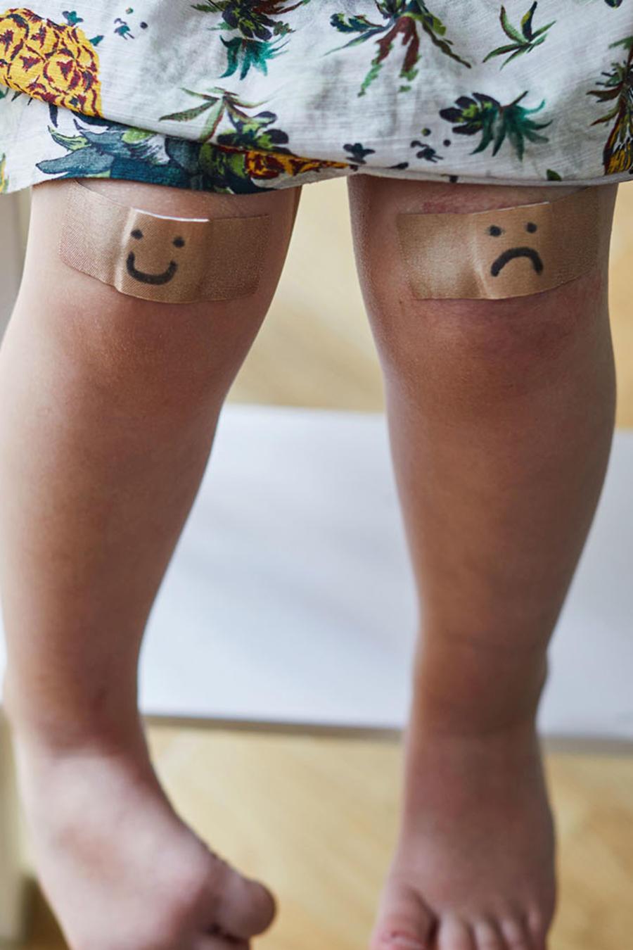 Niño con heridas en las rodillas