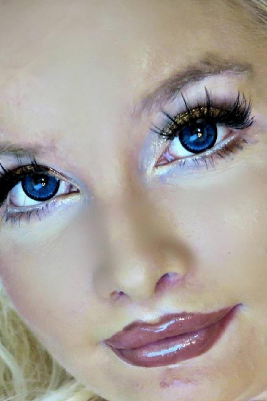 Mujer se ha convertido en la primera Barbie cuadripléjica