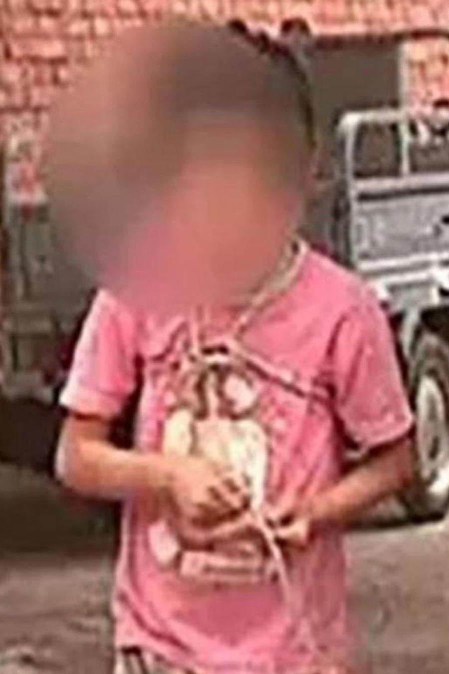Una niña que sufre una enfermedad mental lleva 6 años atada a un árbol