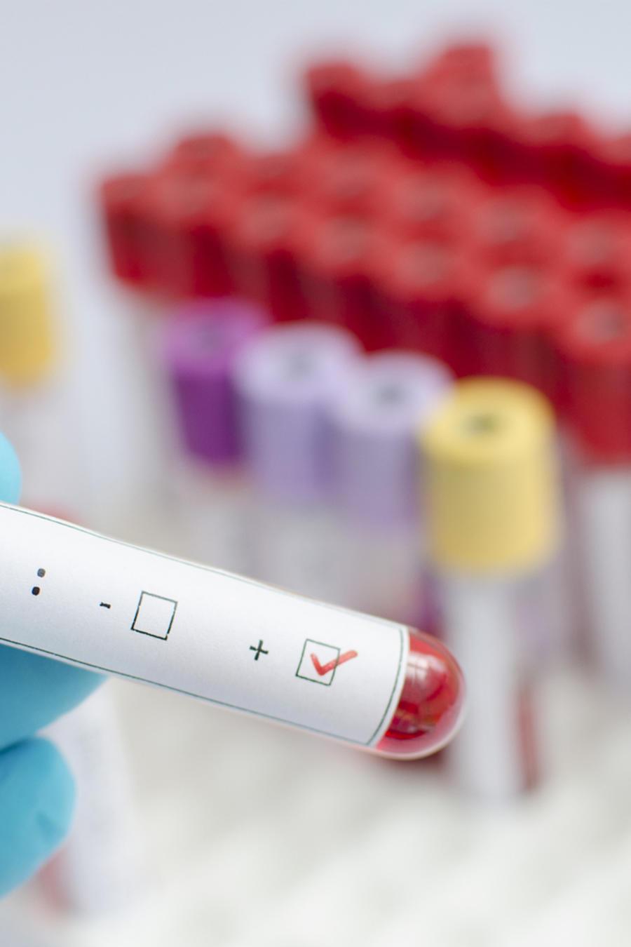 Científico con una prueba de VIH positiva