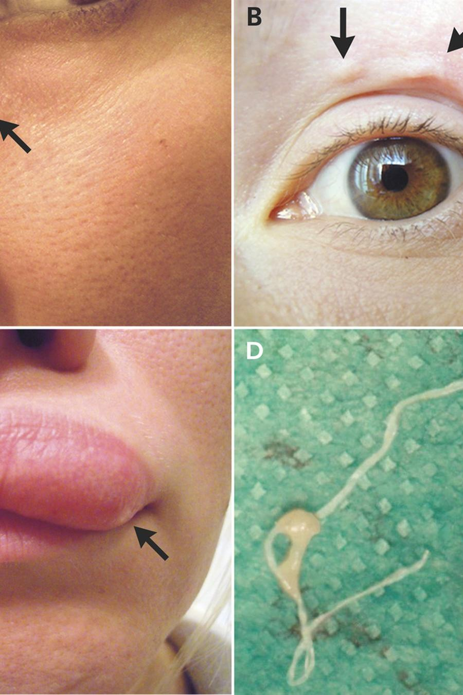 Dirofilaria repens
