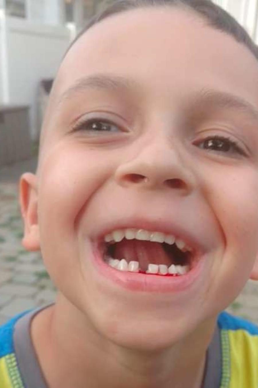 Un niño deja que su padre le arranque uno de sus dientes con un dron.