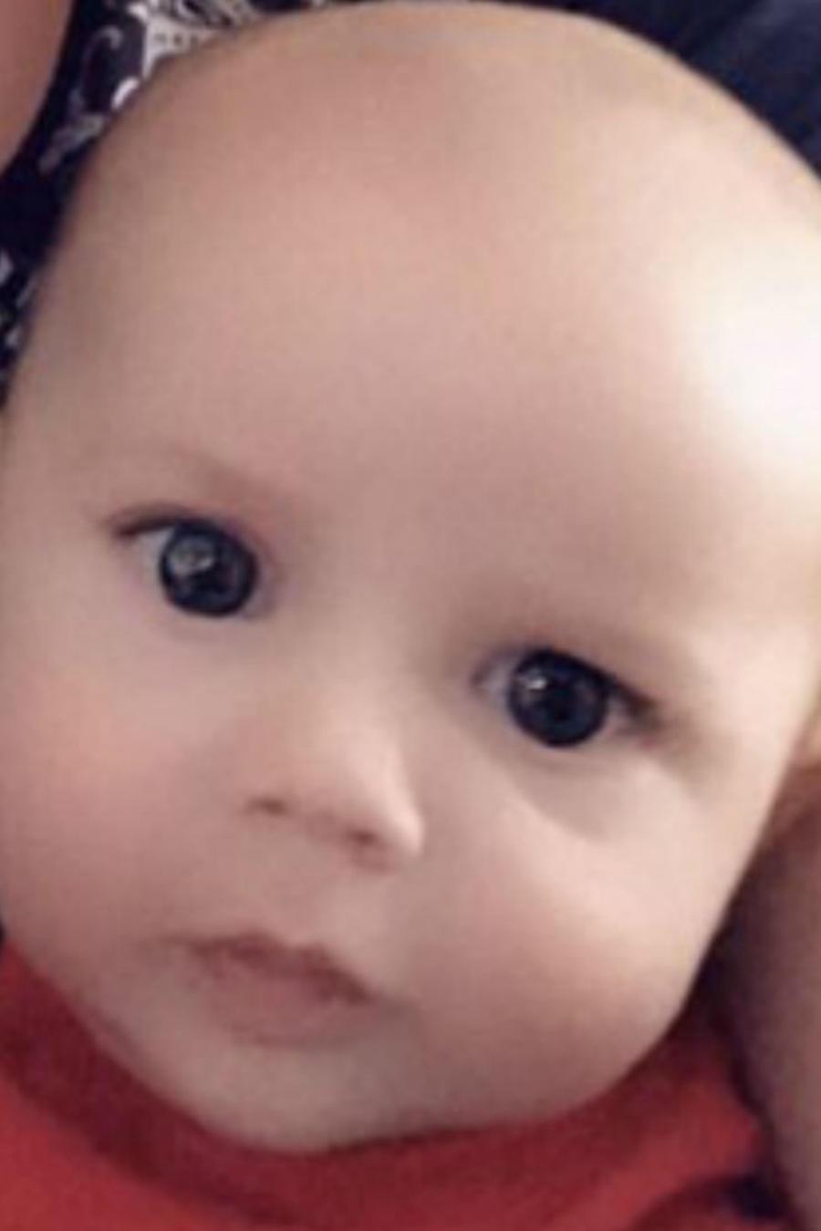 Bebé casi pierde dedos por un cabello