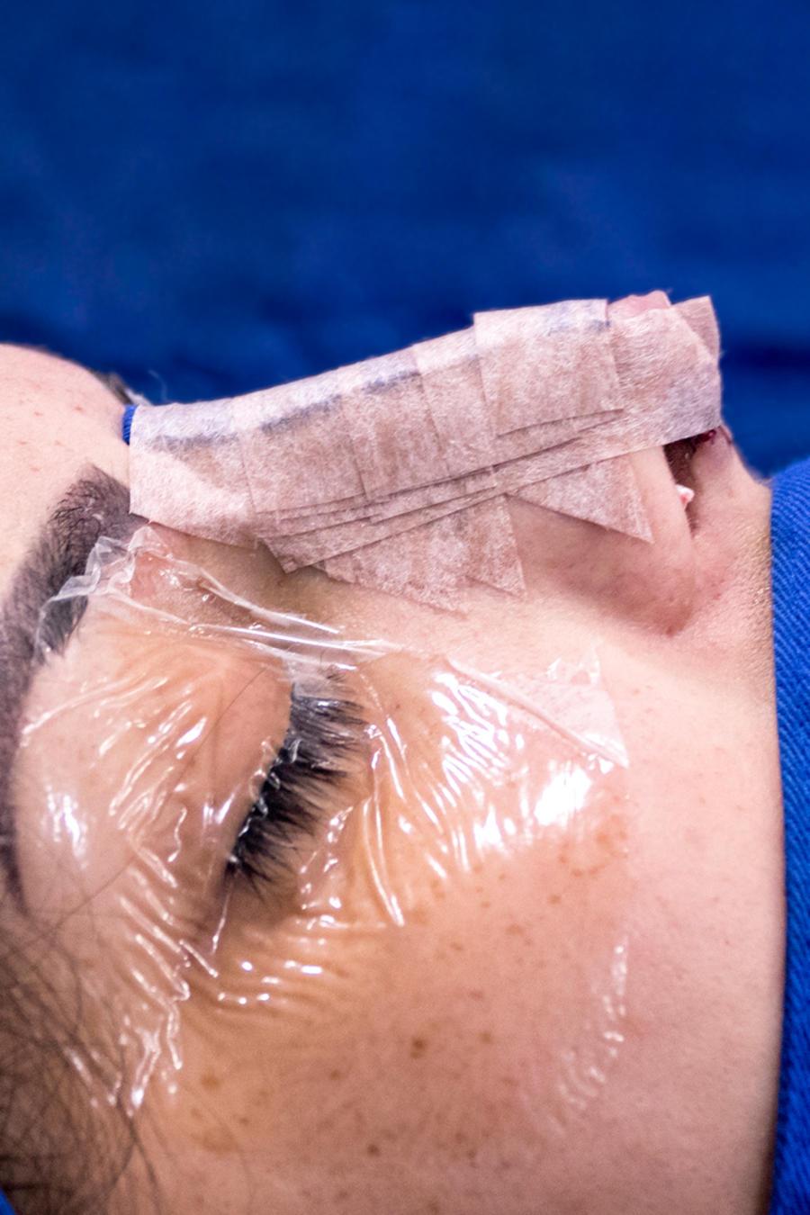 Mujer en operación de nariz.