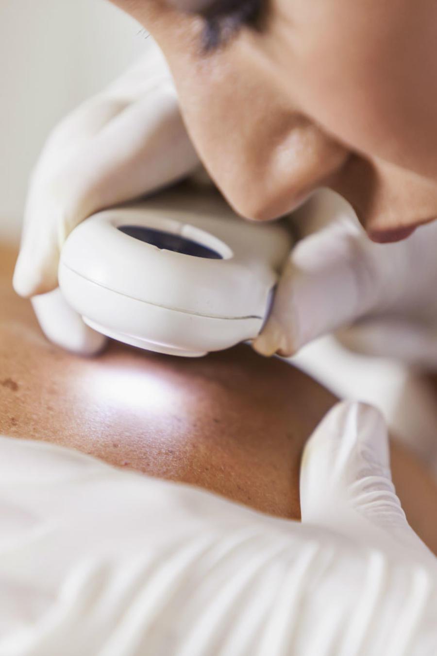 La vitamina A contra el cáncer de piel