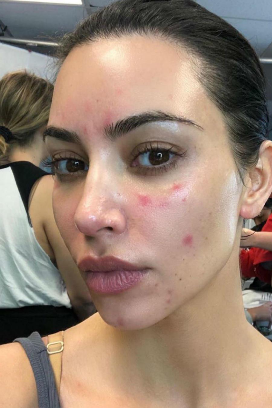 Kim Kardashian con psoriasis